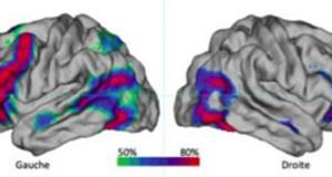 Regione cerebrale dominante per manualità e linguaggio