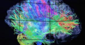 La tecnologia neuro-imaging in tempo reale consente uno sguardo all'interno della cellula.