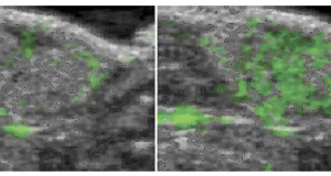 Microbolle e US per visualizzare un tumore
