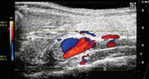 US per analizzare gli aneurismi aortici