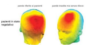 L'Imaging mostra come pazienti in stato vegetativo possano essere coscienti e attenti