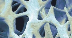 Nasce a Milano l'osso bionico che si stampa in 3D