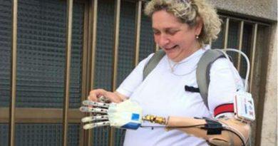 E' italiana la prima mano bionica